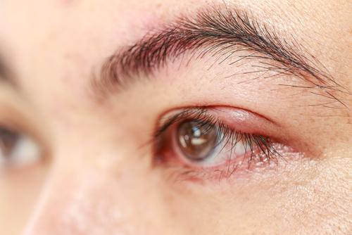 operácia očí