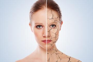 Základné pravidla starostlivosti o suchú pokožku
