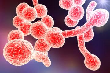 Čo pomáha pri kvasinkovej infekcii?
